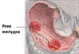 dohányzás a peptikus fekély kialakulásában)