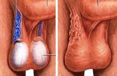 A legfejlettebb prosztatagyulladás-kezelési módszerek. Bakteriofág prostatitisszel