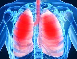 A tüdőödéma jelei - HáziPatika